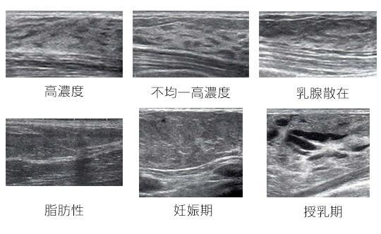 乳がん 検診 エコー エコー(超音波)検査では何が見つかるの?乳がん検診について知ろう